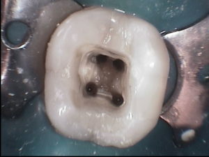 root canal filling treatment painless value comfortable